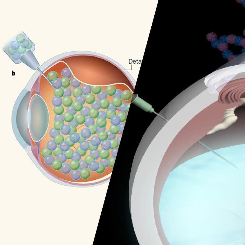 人工硝子体の開発