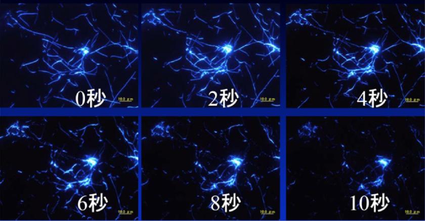 角膜ジストロフィの分子メカニズムに基づく光線力学療法と予防点眼薬の開発