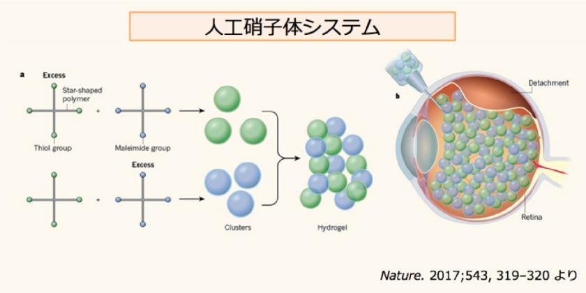 人工硝子体システム