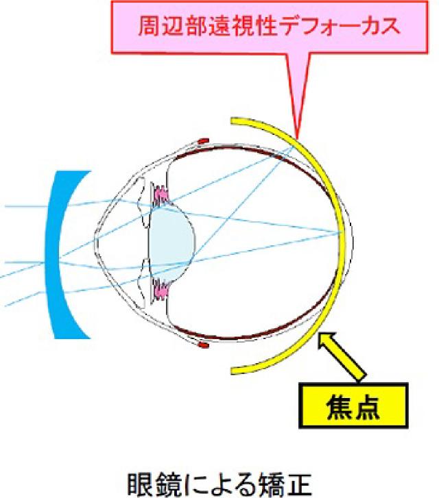 軸外収差補正眼鏡による近視進行抑制
