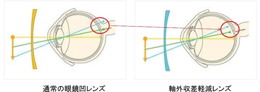通常の眼鏡凹レンズ/軸外収差軽減レンズ