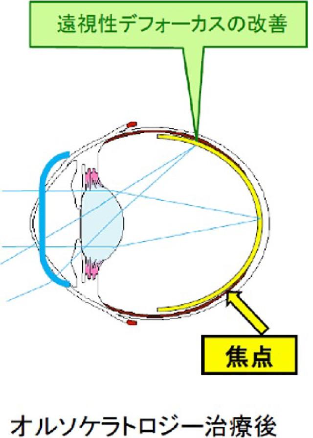 オルソケラトロジーによる近視進行抑制
