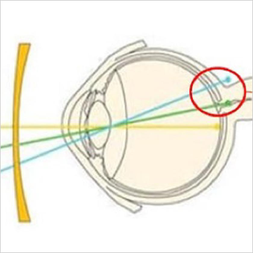 近視進行抑制の臨床研究