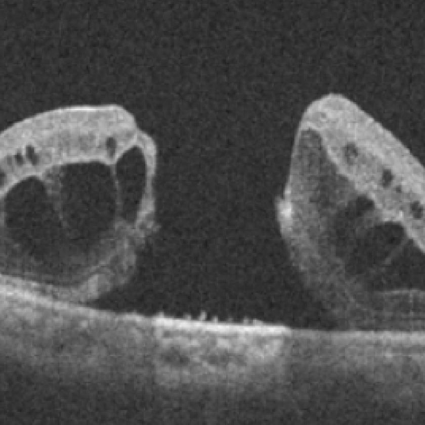 網膜硝子体疾患の臨床研究