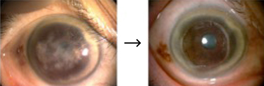 角膜移植術前後