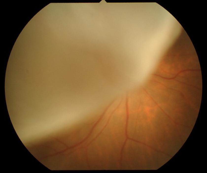 手術が必要な網膜剥離