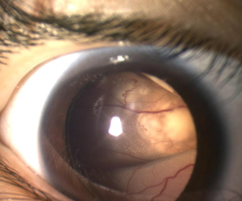 白色瞳孔を呈す網膜芽細胞腫