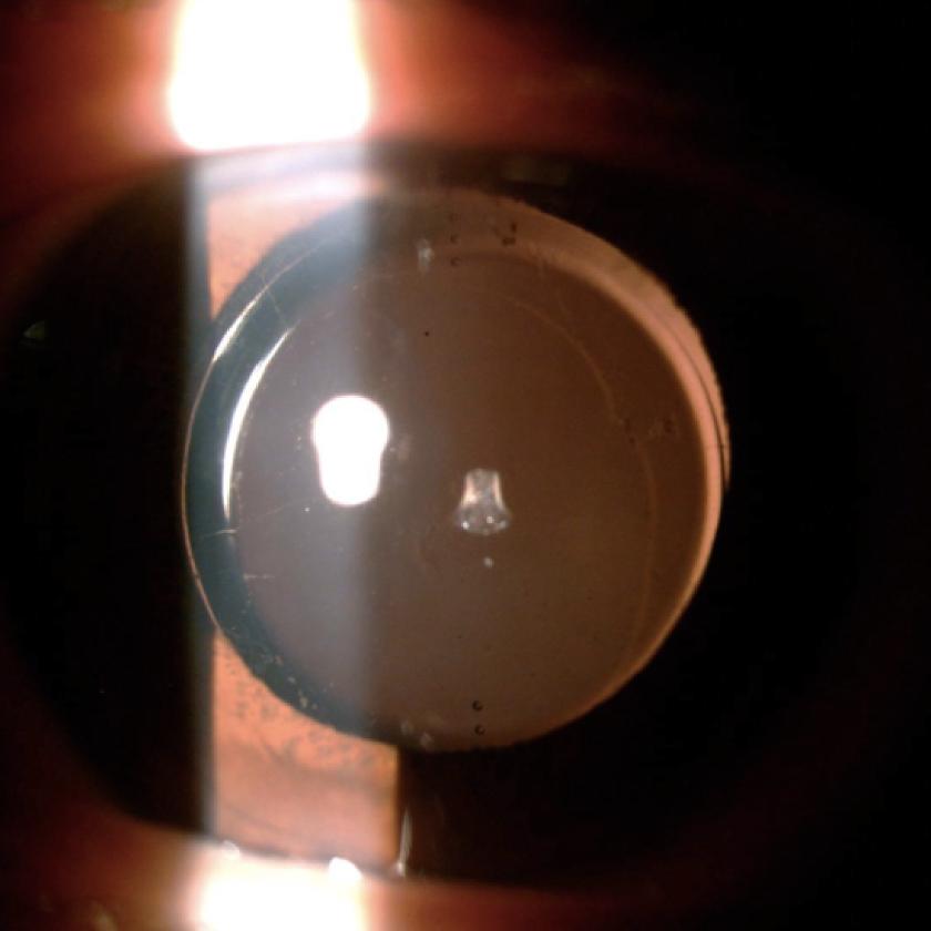 乱視と乱視矯正眼内レンズに関する研究